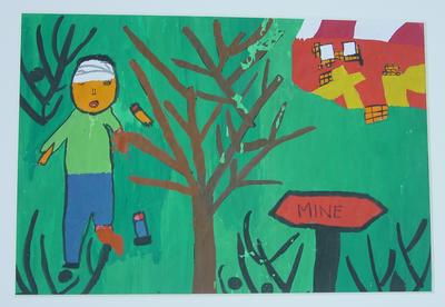 Painting of child injured by a landmine